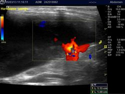 Ultraschall einschließlich offizieller Untersuchung auf ektopische Ureteren und Polyzystische Nierenerkrankung (PKD)